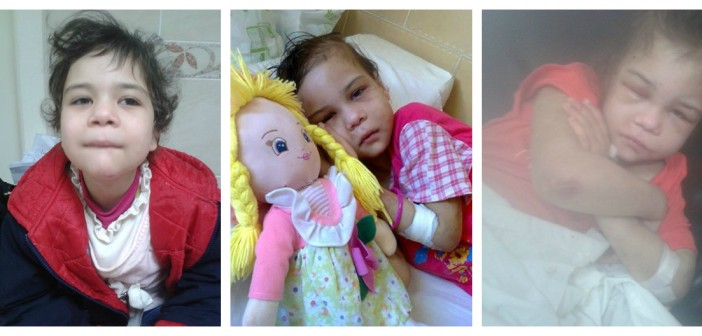 وجع «ضحكة صغيرة».. الطفلة إيمان أصيبت بالعمى بعد تعرضها للتعذيب 3 سنوات (صور)
