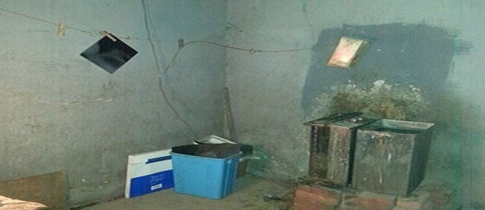 صورة صادمة.. غرفة تحميض أشعة مستشفى خاص عبارة عن «غلاية وجردل وحبل غسيل»