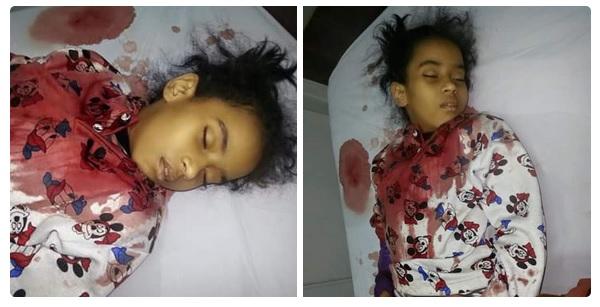الطفلة منة دخلت مستشفى حكومي لإزالة «اللوز» فأصيبت بنزيف وماتت