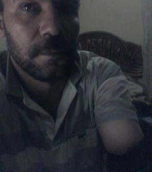 مواطن: إهمال 6 أطباء أدى إلى بتر يدي في مستشفى بالإسكندرية