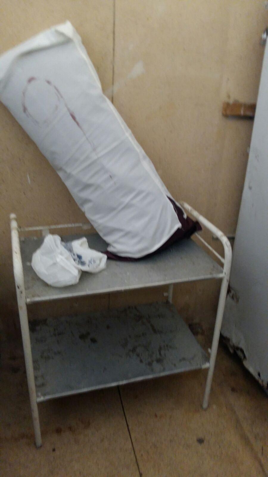 إهمال مستشفى الشاطبي بالإسكندرية.. دماء وقذارة وثوب المرضى يغسل بـ«جردل»