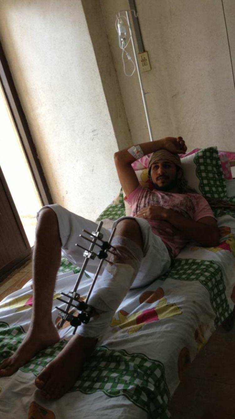 مواطن: أمين شرطة أطلق النار علي.. وأصابني بعاهة مستديمة في قدمي