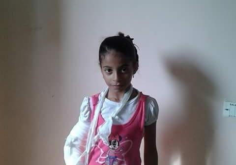 «أسماء».. سقطت من على سطح منزلها.. وخطأ طبي يشوه ذراعها (صور)