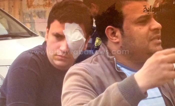صور لعيني المصابة