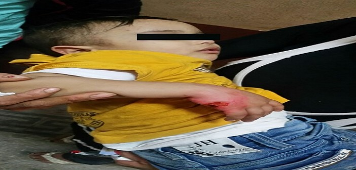 مواطنة تتهم قوة قسم شرطة بتحطيم منزلها.. وحرق يد ابنها بـ«سيجارة» (صور)