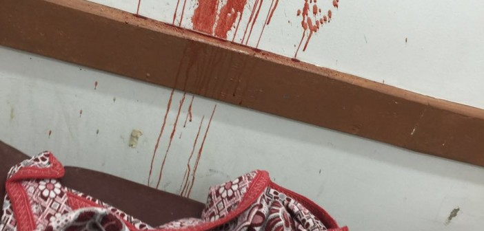 صور | دماء تلطخ جدران مستشفى إدفو.. ومخلفات طبية قرب أسرة المرضى