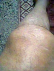 (حالة إنسانية) مريض بالهيموفليا يستغيث بمسئولي وزارة الصحة لتوفير عقار «الفاكتور للتأمين »